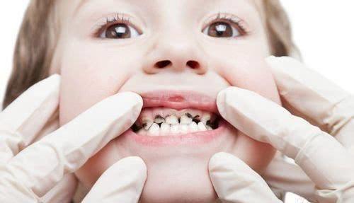 宝宝牙齿蛀牙